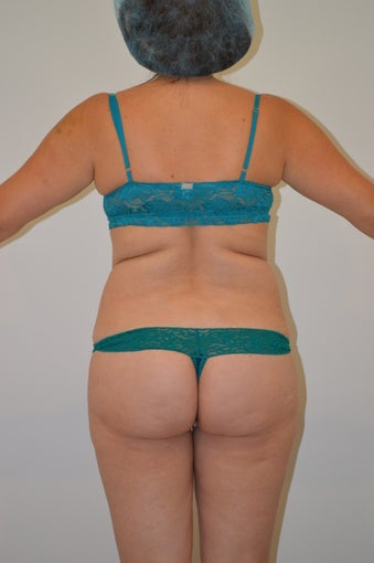 VASER Hi-Definition Female Abdomen and Flanks 970000