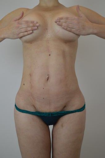 VASER Hi-Definition Female Abdomen and Flanks after 970000