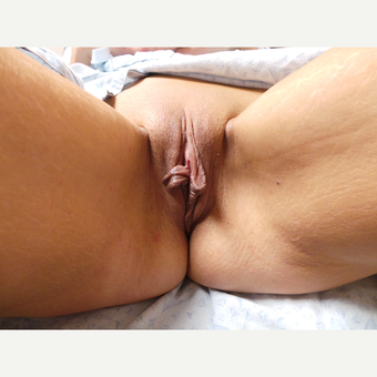 25-34 year old woman treated with Labiaplasty before 3124481