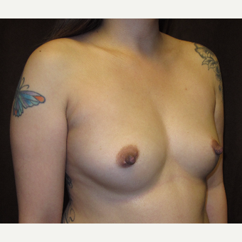 25-34 year old woman treated with Breast Augmentation before 3049386