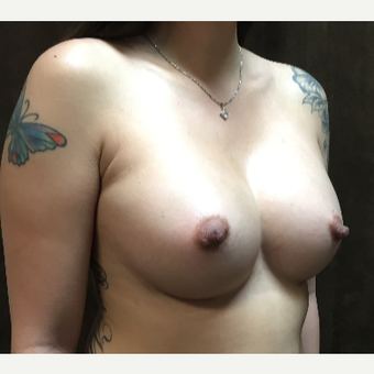 25-34 year old woman treated with Breast Augmentation after 3049386