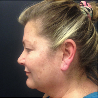 45-54 year old woman treated with Non-Surgical Neck Lift before 3665186