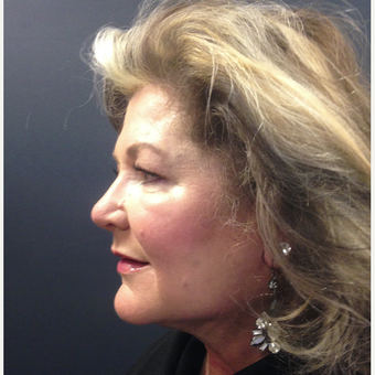 45-54 year old woman treated with Non-Surgical Neck Lift after 3665186