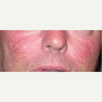 45-54 year old man treated with Yag Laser before 3377680