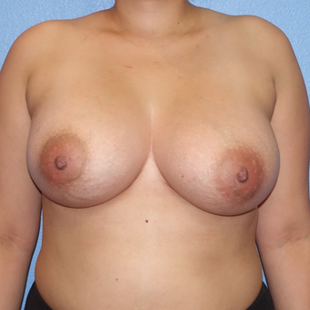 25-34 year old woman treated with Breast Augmentation after 3137435