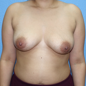 25-34 year old woman treated with Breast Augmentation before 3137435