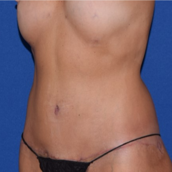 45-54 year old woman treated with No-Drain Body Lift after 3755257