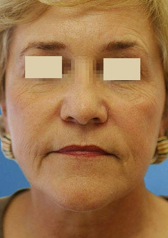 Artefill for NasoLabial Folds after 109217
