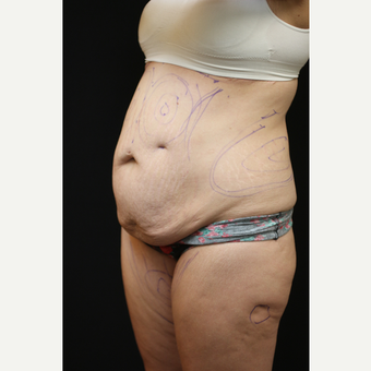 30 year old woman treated with Tummy Tuck before 3089261