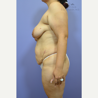 35-44 year old woman treated with Mommy Makeover before 3391815