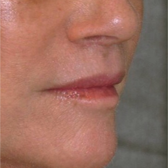 65-74 year old woman treated with Lip Lift to improve lip volume and upper lip contour after 3481828