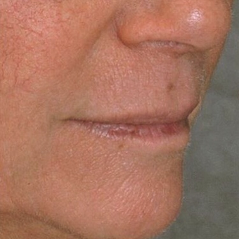 65-74 year old woman treated with Lip Lift to improve lip volume and upper lip contour before 3481828