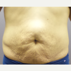 18-24 year old woman treated with Tummy Tuck before 3590096