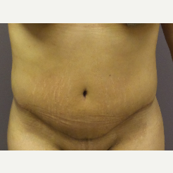 18-24 year old woman treated with Tummy Tuck after 3590096