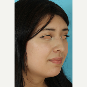 25-34 year old woman treated with Rhinoplasty before 3691285