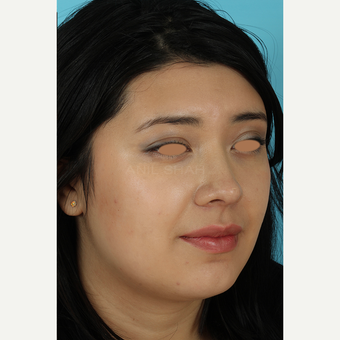 25-34 year old woman treated with Rhinoplasty after 3691285
