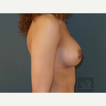 35-44 year old woman treated with Breast Implants after 3094457