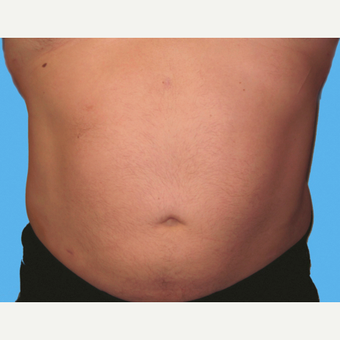 Liposuction before 3810234
