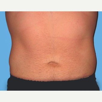 Liposuction after 3810234