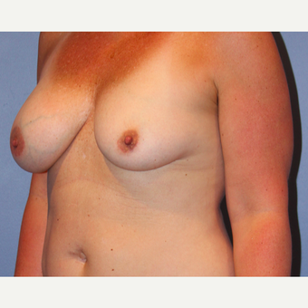 35-44 year old woman treated with Breast Augmentation before 3215193