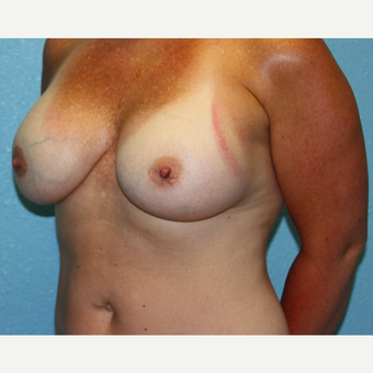 35-44 year old woman treated with Breast Augmentation after 3215193