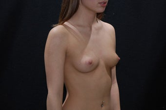 Breast Augmentation 411221