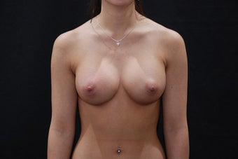 Breast Augmentation after 411221