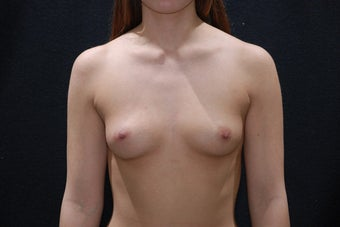 Breast Augmentation before 411221