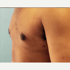 Male Breast Reduction after 3278953