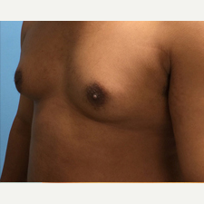 Male Breast Reduction before 3278953