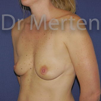 35-44 year old woman treated with Breast Augmentation before 3595520
