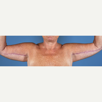 55-64 year old woman treated with Arm Lift after 3837599