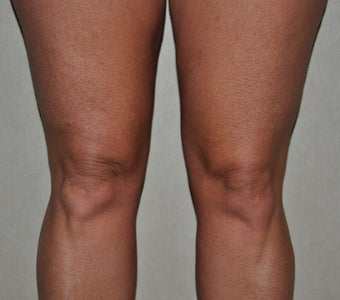 55 Year Old Female Treated For Knobby Knees after 935309