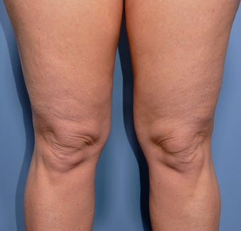 55 Year Old Female Treated For Knobby Knees before 935309