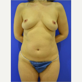 45-54 year old woman treated with Breast Reconstruction before 3744684