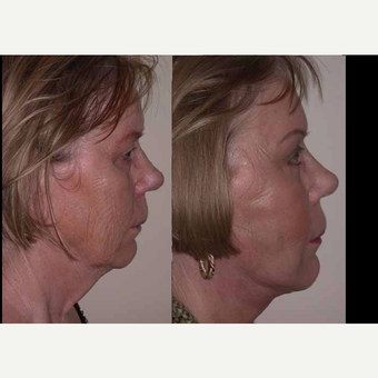 65-74 year old woman treated with Facelift before 3602548