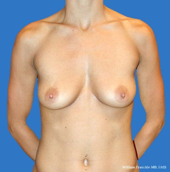 Breast Augmentation: Saline Implants 34B-34D before 2499305