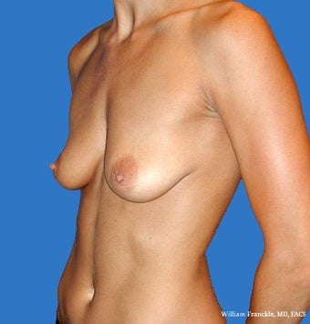 Breast Augmentation: Saline Implants 34B-34D 2499305