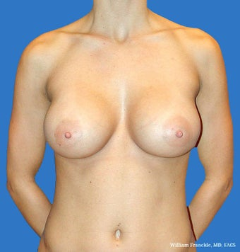 Breast Augmentation: Saline Implants 34B-34D after 2499305