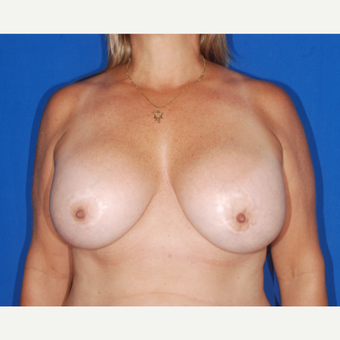 45-54 year old woman treated with Breast Lift before 3695181