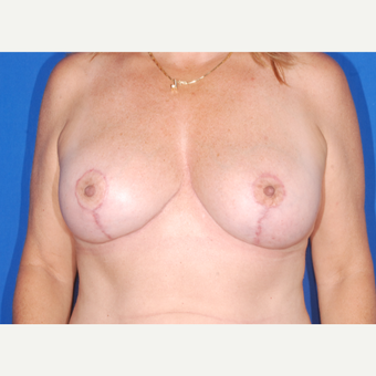 45-54 year old woman treated with Breast Lift after 3695181