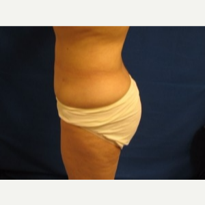 45-54 year old woman treated with Liposuction after 3163180