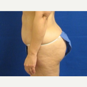 45-54 year old woman treated with Liposuction before 3163180