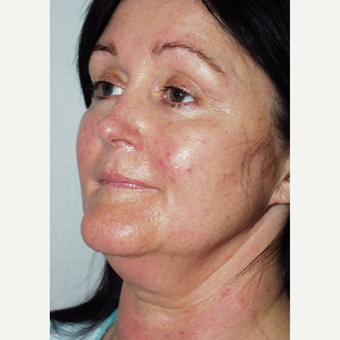48 year old woman undergoes facelift before 3440041