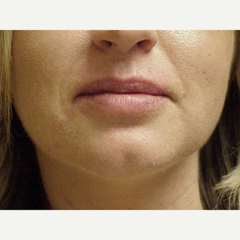 25-34 year old woman treated with Juvederm Volbella after 3615631