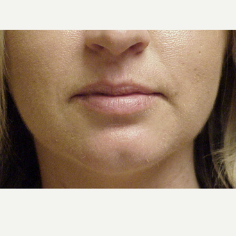 25-34 year old woman treated with Juvederm Volbella before 3615631