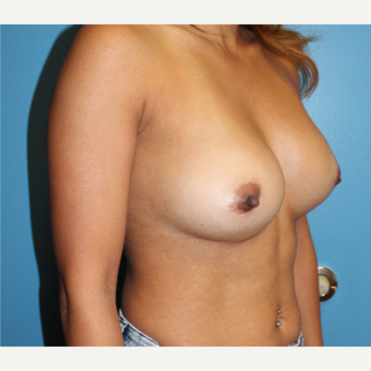 25-34 year old woman treated with Breast Augmentation after 3425751
