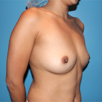 25-34 year old woman treated with Breast Augmentation before 3425751