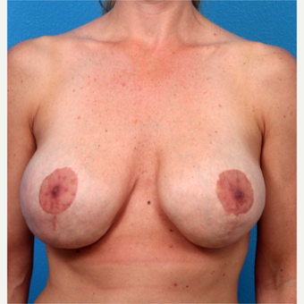 35-44 year old woman treated with Breast Implant Removal before 3219078