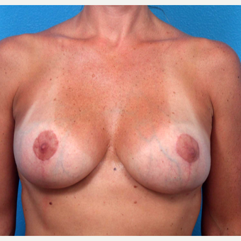 35-44 year old woman treated with Breast Implant Removal after 3219078